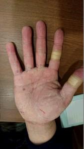 掌蹠膿疱症①