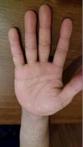掌蹠膿疱症②